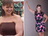 英妇女手术减肥后暴瘦 仅能吃冰块