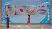 《健康之路》 20201123 皮肤上的危险信号