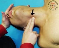 男人的喉结大而突出;女人的喉结小而隐蔽