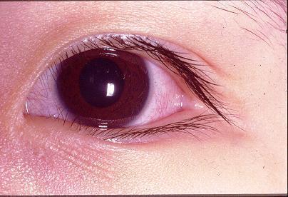 眼睛外部构造图解