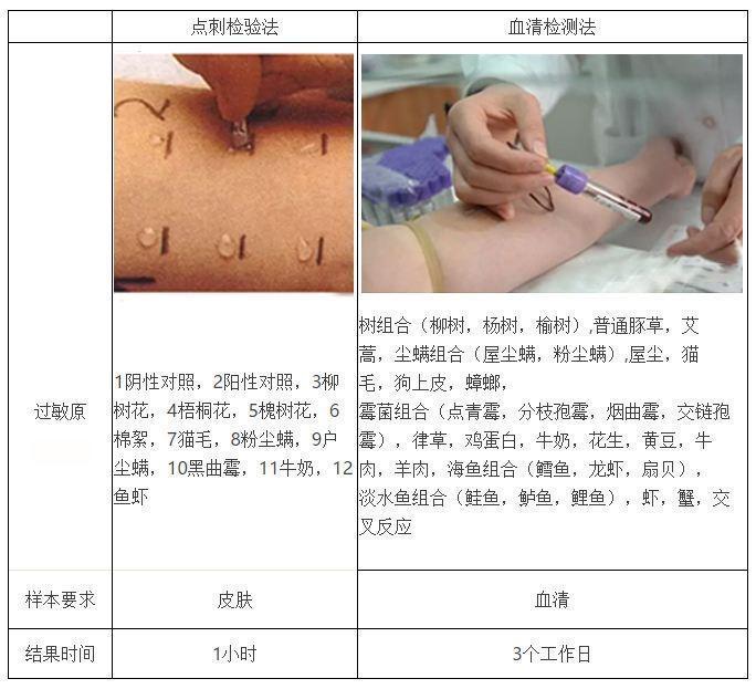 冯文凤:过敏原测试需要查哪些项目?