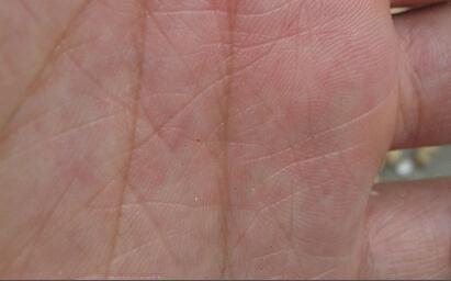 手掌皮内红点,微痒,出汗,蜕皮图片