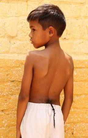 """[转载]印度8岁男孩长""""尾巴""""被奉为""""猴神"""" - 烟圈 - 烟圈的博客"""