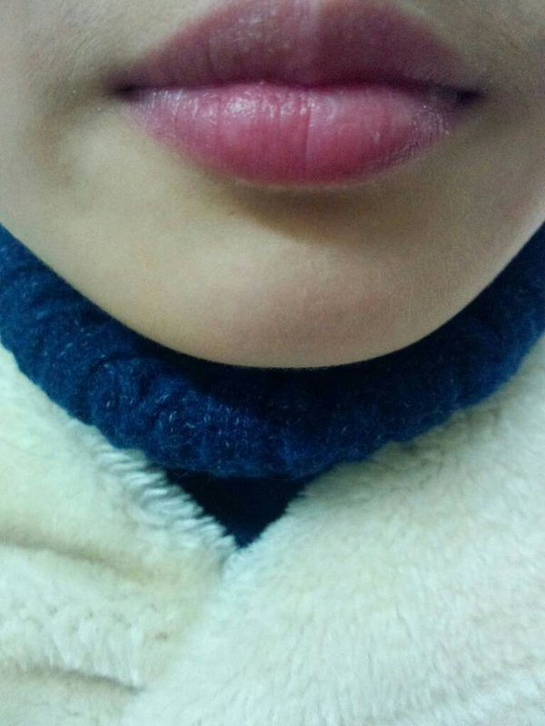 种植牙手术拆线了以后,发现嘴唇上有一块长了好多小疙瘩,用舌头舔能