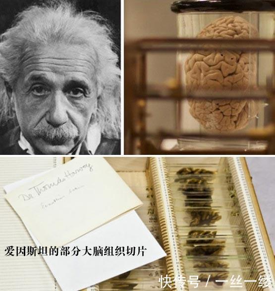 爱因斯坦脑切片被展出,史上最奇特的名人器官展览!