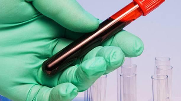一管血就能测癌 资本抢跑200亿液体活检市场