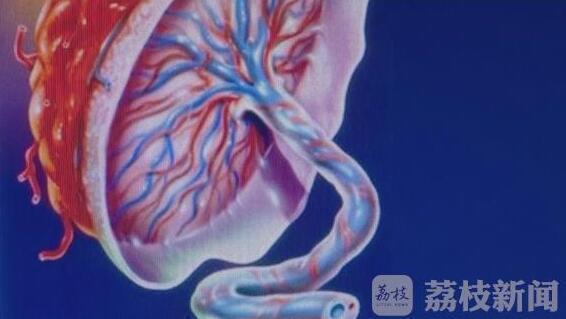 产妇生儿子胎盘被医院员工拿回家炖汤