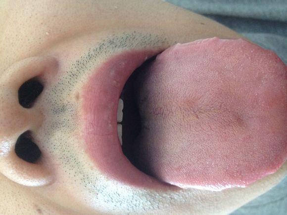 有没有能看舌苔的大神(中医)