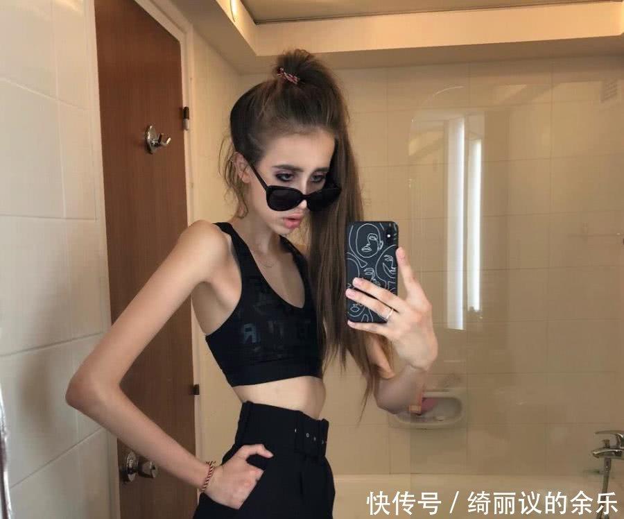 """回眸靓丽网 [推荐]俄罗斯女孩减肥至30kg,像个""""行走的骨架"""",男朋友还不满意"""